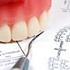 手稲区西宮の沢の歯医者あきデンタルクリニックの義歯・入れ歯