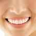 手稲区西宮の沢の歯医者あきデンタルクリニックの審美歯科・ホワイトニング